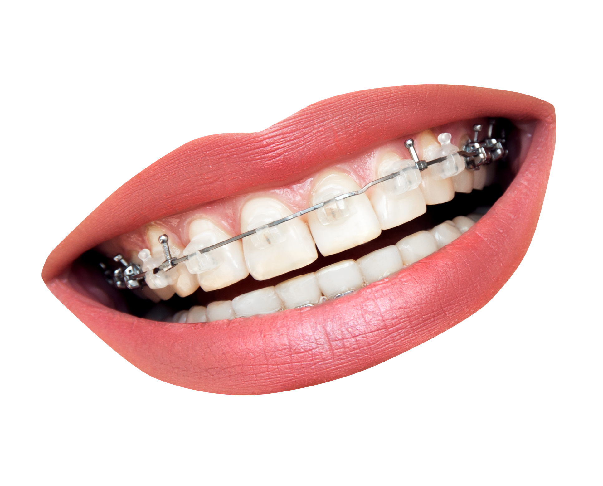 kisspng-dental-braces-dentistry-orthodontics-tooth-clear-a-teeth-with-braces-5a72963b44a719.5935776215174590032812